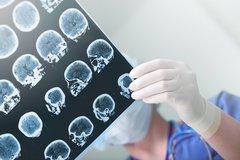 Erkenntnisse aus der Neuroökonomie: Risikointelligent entscheiden